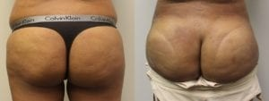 Brazilian Butt Lift Before and After Photos - Patient 2B