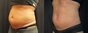 Coolsculpting Before and After Photos - Patient 10C