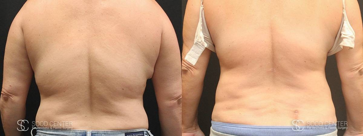 Coolsculpting Before and After Photos - Patient 11A