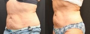 Coolsculpting Before and After Photos - Patient 12A