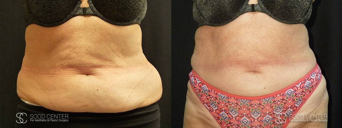 Coolsculpting Before and After Photos - Patient 14A