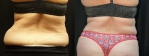 Coolsculpting Before and After Photos - Patient 14B