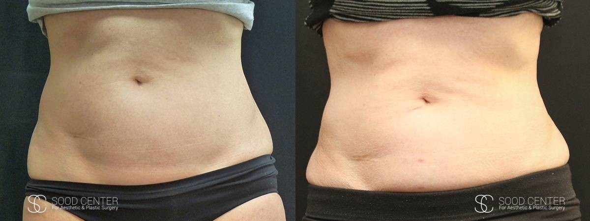 Coolsculpting Before and After Photos - Patient 17A