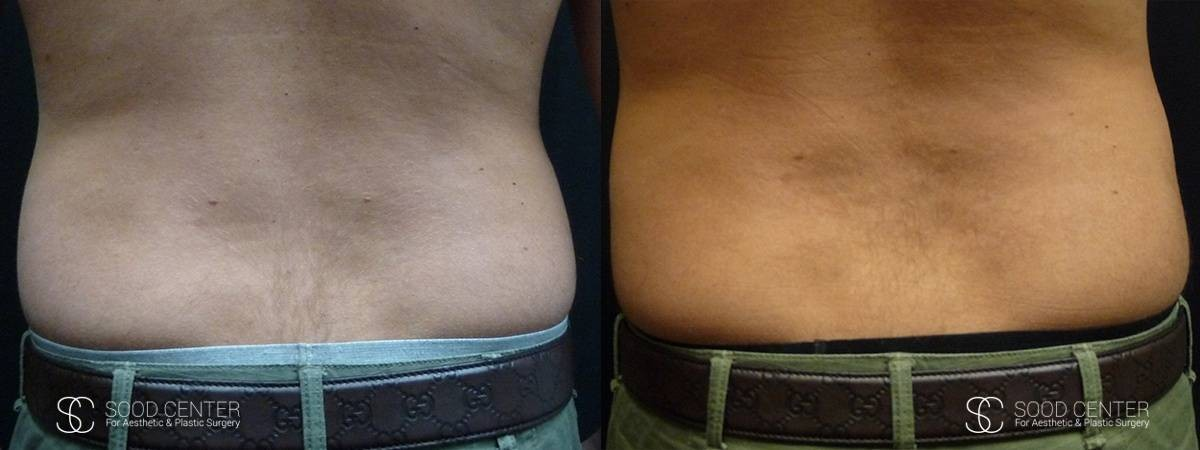 Coolsculpting Before and After Photos - Patient 1