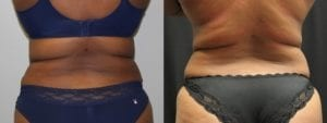 Coolsculpting Before and After Photos - Patient 18A