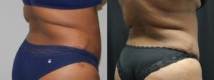 Coolsculpting Before and After Photos - Patient 18C