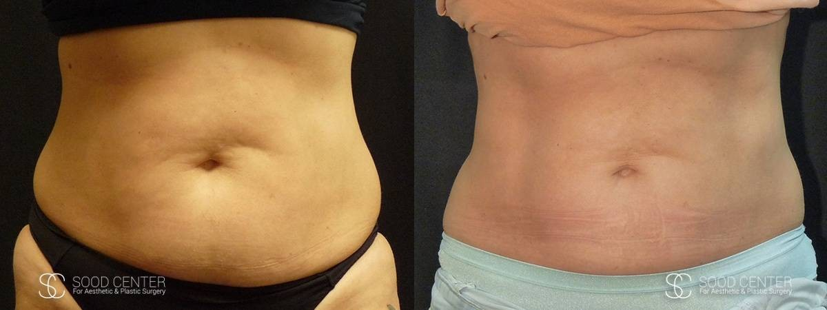 Coolsculpting Before and After Photos - Patient 20A