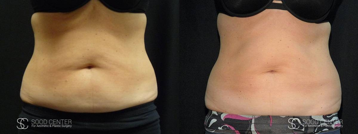 Coolsculpting Before and After Photos - Patient 23A