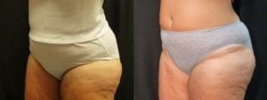 Coolsculpting Before and After Photos - Patient 25B