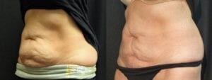 Coolsculpting Before and After Photos - Patient 28A