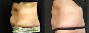Coolsculpting Before and After Photos - Patient 28B