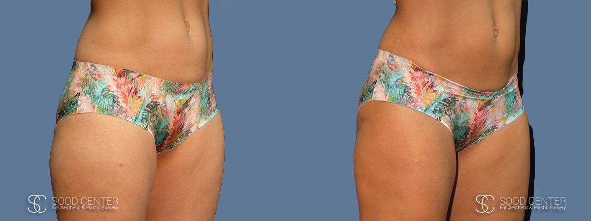 Coolsculpting Before and After Photos - Patient 2A
