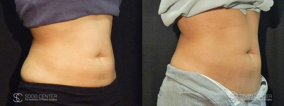 Coolsculpting Before and After Photos - Patient 3