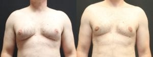 Gynecomastia Before and After Photo - Patient 2A