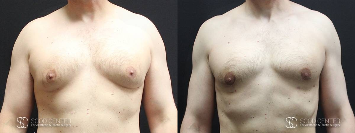 Gynecomastia Before and After Photo - Patient 3A