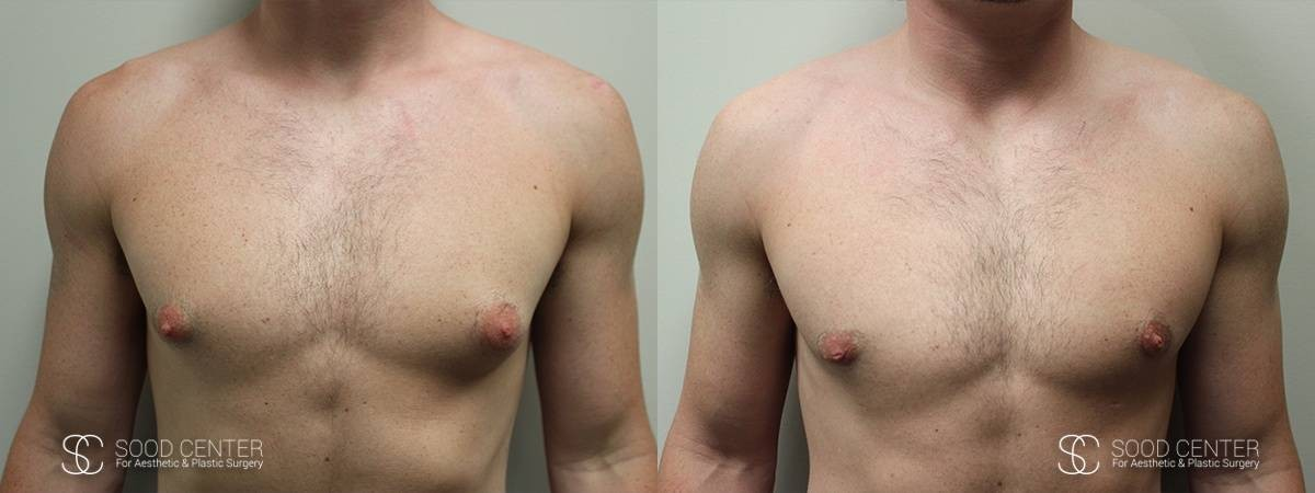 Gynecomastia Before and After Photo - Patient 1A
