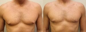 Gynecomastia Before and After Photo - Patient 4A