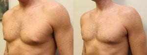 Gynecomastia Before and After Photo - Patient 4B