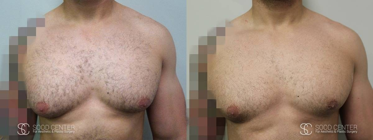 Gynecomastia Before and After Photo - Patient 5A