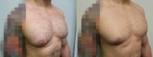 Gynecomastia Before and After Photo - Patient 5B