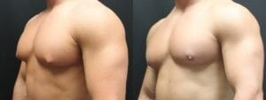 Gynecomastia Before and After Photo - Patient 6B