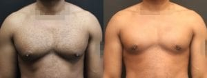 Gynecomastia Before and After Photo - Patient 8A