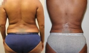 Liposuction Before and After Photos - Patient 3C