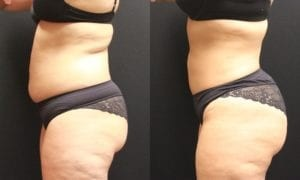 Liposuction Before and After Photos - Patient 4C