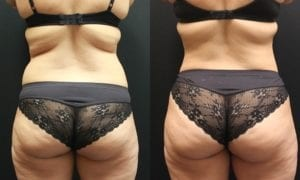 Liposuction Before and After Photos - Patient 4E
