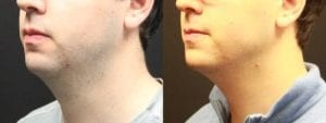 Kybella Before and After Photo - Patient 1B