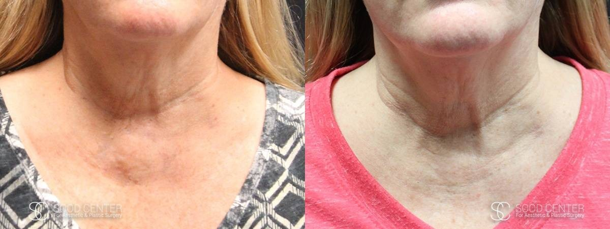Kybella Before and After Photo - Patient 2