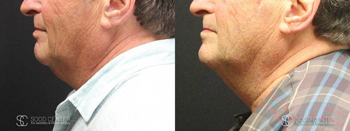 Kybella Before and After Photo - Patient 3A