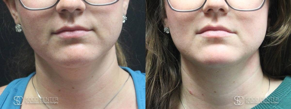 Kybella Before and After Photo - Patient 4A