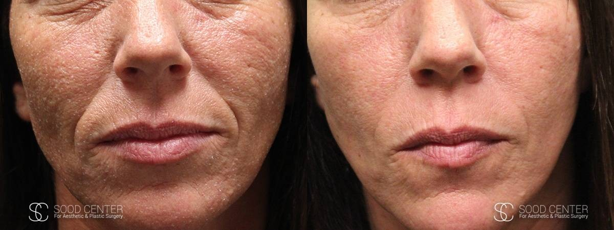 Microneedling Before and After Photo - Patient 2