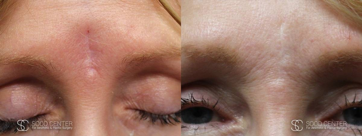 Scar Revision Before and After Photo - Forehead
