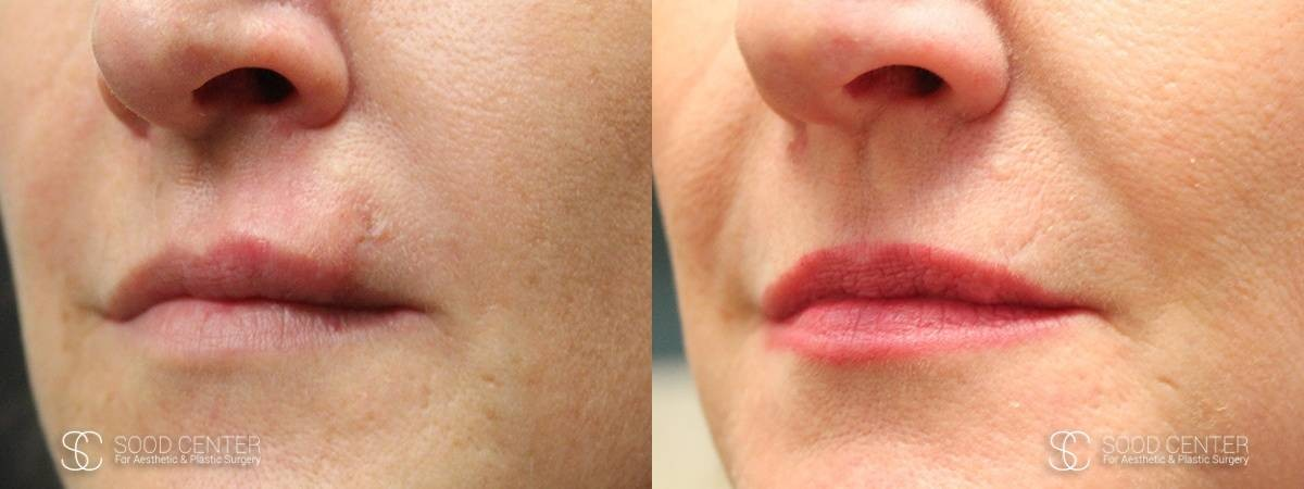 Scar Revision Before and After Photo - Upper Lip