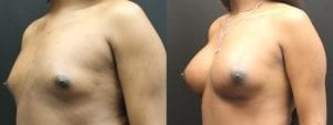 Breast Augmentation for Transgender Woman Before & After Photo - 1B