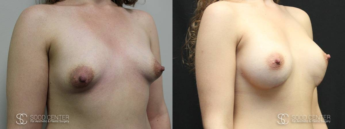 Tuberous Breast Before & After Pictures - Patient 2